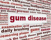 Gum disease warning message