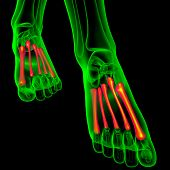 3D Render Medical Illustration Of The Metatarsal Bones