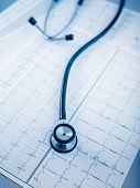 Stethoscope on cardiogram concept for heart care on the desk.