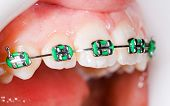 stock photo of overbite  - Close up photo of teeth with orthodontic braces - JPG