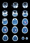 image of hemorrhage  - Hemorrhagic Stroke  - JPG