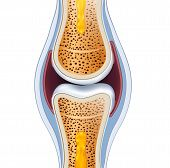 picture of joint  - Normal synovial joint anatomy - JPG