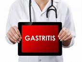 picture of gastritis  - Doctor showing tablet with text - JPG