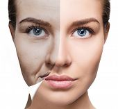 Womans Face Before And After Rejuvenation. poster