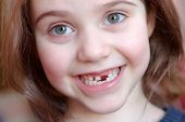 The Adorable Girl Smiles With The Fall Of The First Baby Teeth. poster