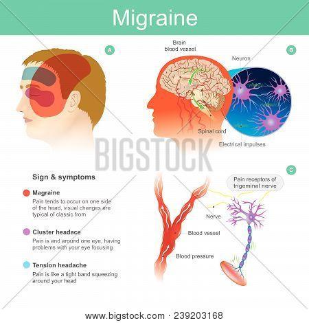 Migraine Headache Pain Tend Cooccur