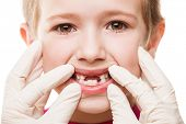 Dental medicine and healthcare - child patient open mouth showing first baby milk or temporary teeth