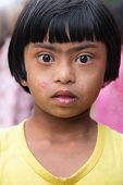 ELLA, SRI LANKA - MARCH 2, 2014: Portrait of Sri Lankan girl with Down Syndrome. 24.000 cases of Dow