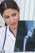 A Latina Hispanic female medical doctor surgeon looking at hip replacement x-ray in a hospital