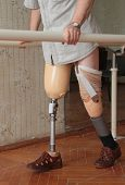 picture of amputee  - Male prosthesis wearer training in a special interior area - JPG