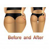 stock photo of cellulite  - Woman - JPG