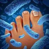 stock photo of human toe  - Foot bacteria disease causing a smelly odor with a close up of the human body showing toes with blue bacterial infection danger as a symbol of skin illness as a podiatry or podiatric medicine concept - JPG