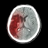 stock photo of hemorrhage  - CT brain  - JPG