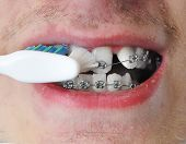 image of crooked teeth  - Young man brushes his pure white clean teeth - JPG