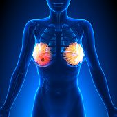 Breast Cancer - Female Anatomy - Tumor Highlight